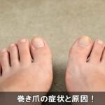 手足の爪が曲がって痛い症状は巻き爪に注意!原因と種類はコレ