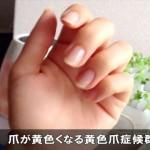 手足の爪が黄色い症状の時は黄色爪症候群に注意!原因はコレ!