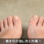手足の爪が曲がって食い込む巻き爪の治し方と予防対策の方法!