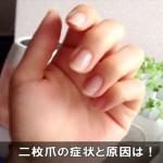 爪の先が剥がれる症状は二枚爪!原因と二重爪との違いは!